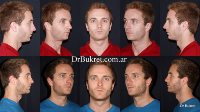 Rhinoplasty and mentoplasty with silicone chin implant